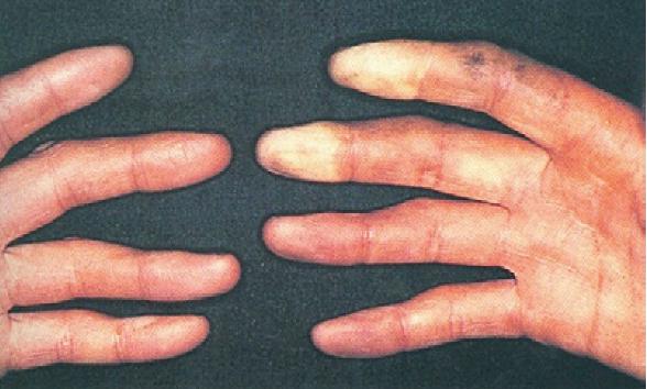hormigueo dedo fatiga: